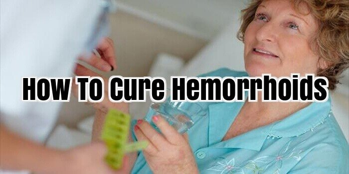 How To Cure Hemorrhoids